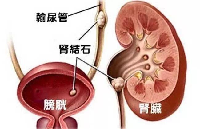肾结石怎么办